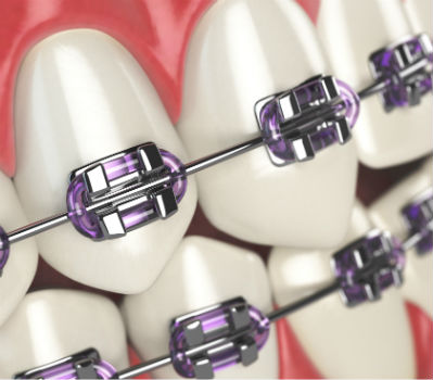 Ortodoncia en Fuengirola