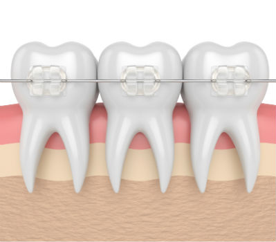 Ortodoncia en Fuengirola estética